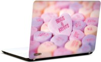 Pics And You Hugs N Kisses Vinyl Laptop Decal (Laptops And Macbooks)